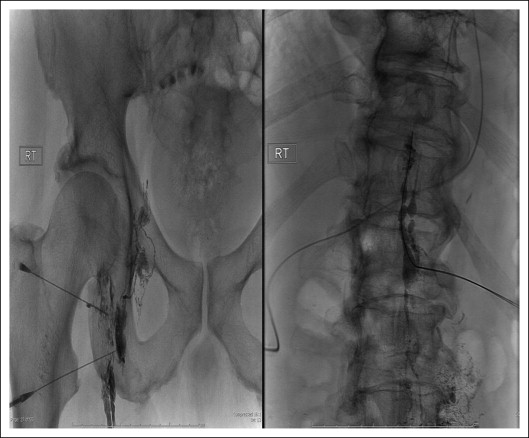 percutaneous embolization of thoracic duct injury post