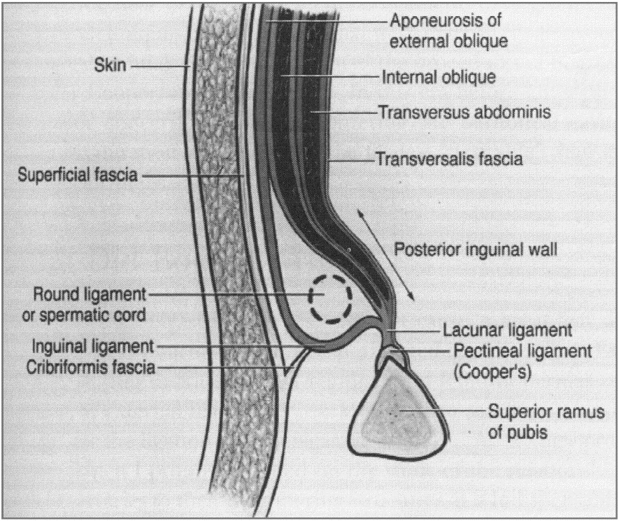 Abdominal Wall Anatomy The Key To A Successful Inguinal