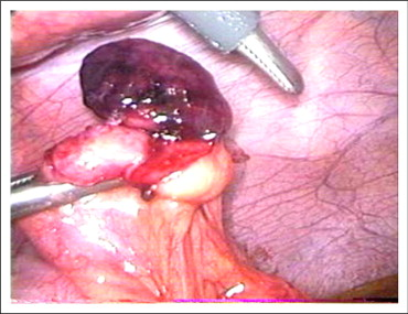 Torsion Of The Primary Epiploic Appendagitis A Case