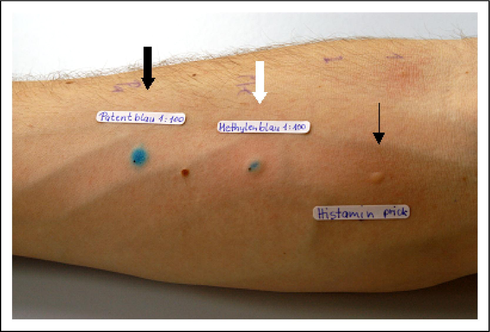 Hypersensitivity Reaction Against Patent Blue During
